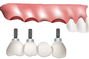 Drawing of an Implant Supported Bridge