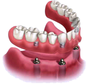Image of an Implant Supported Denture