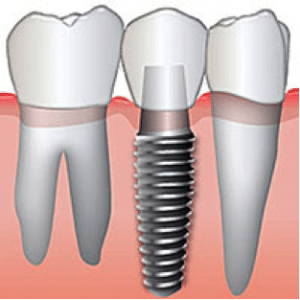 Drawing of a Single Tooth Replacement